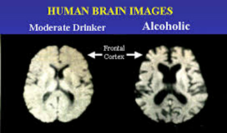 Alcohol Brain Damage >> Alcohol Related Brain Damage Texila Connect