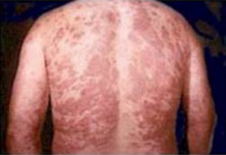 the clinical description of the chronic bacterial disease leprosy The continuing challenges of leprosy clinical  leprosy/hansen's disease in  leprosy also known as hansen s disease is a chronic infectious disease.