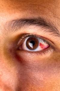 Red-Eye-1-200x300