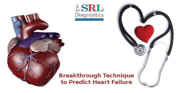 breakthrough-technique-to-predict-heart-failure