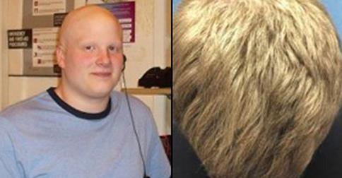 Drug gives bald man full head of hair