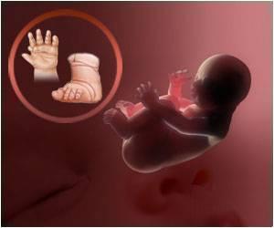 birth-defects