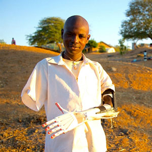 3D-printed prosthetic arms rescue child victims of war