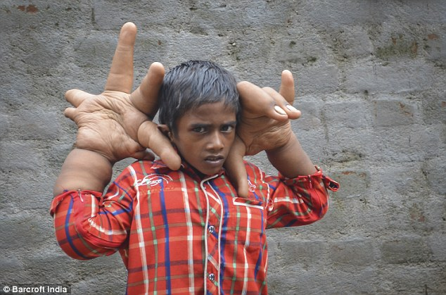 Medical mystery as boy grows giant 40-pound hands
