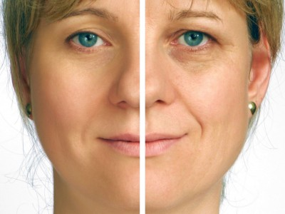 Natural-Ways-to-Prevent-Wrinkles