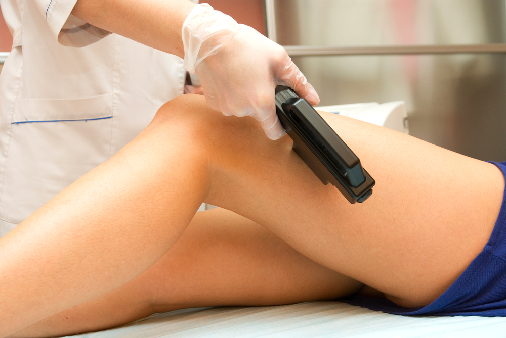 For Varicose Veins, Laser Treatment Is Best